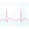의료 심전도 - 그리드에 심전도 | Stock Vector Graphics