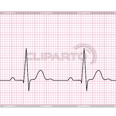 графики кардиограмма